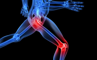 Joint-pain-relief-using-natural-solutions[1]